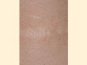 肥厚性瘢痕 治療後