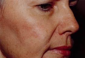 顔のシミ 治療後