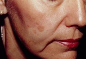 顔のシミ 治療前