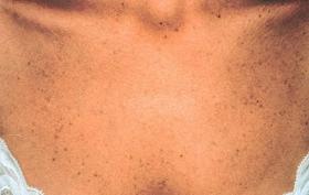 胸元のシミ 治療後