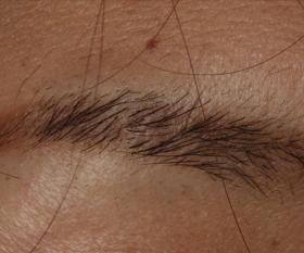 色素性母斑 治療後