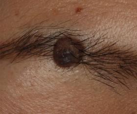 色素性母斑 治療前