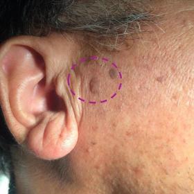 脂漏性角化症 照射前