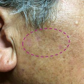 脂漏性角化症 照射約20日