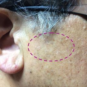 脂漏性角化症 照射約6ヶ月