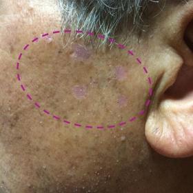 脂漏性角化症 照射後約20日