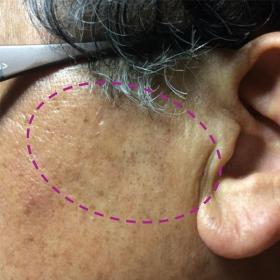 脂漏性角化症 照射後約6ヶ月