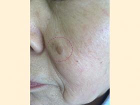 脂漏性角化症 治療前