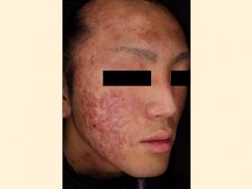 ざ瘡瘢痕 治療前