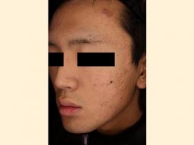 ざ瘡瘢痕 治療後